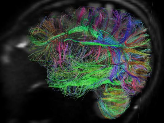 A Diffusion Spectrum MRI (DSI) of the human brain obtained with the MGH-UCLA Human ?Connectom? Scanner. The fiber tracks are color-coded by direction: red=left-right, green  =anterior-posterior, blue=through brain stem. (Credit: National Institutes of Biomedical Imaging and Bioengineering and National Institutes of Health)
